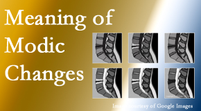 Wilson Family Chiropractic sees many back pain and neck pain patients who bring their MRIs with them to the office. Modic changes are often noted.