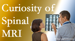 Millville MRIs for spinal stenosis may be revealing…or confusing.
