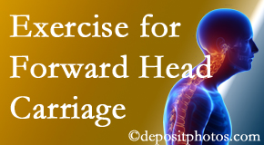 Millville chiropractic treatment of forward head carriage is two-fold: manipulation and exercise.