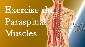 Wilson Family Chiropractic describes the importance of paraspinal muscles and their strength for Millville back pain relief.