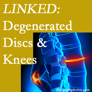 Degenerated discs and degenerated knees are not such strange bedfellows. They are seen to be related. Millville patients with a loss of disc height due to disc degeneration often also have knee pain related to degeneration.