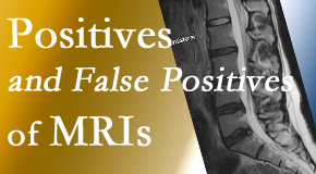 Wilson Family Chiropractic carefully chooses when and if MRI images are needed to guide the Millville chiropractic treatment plan.